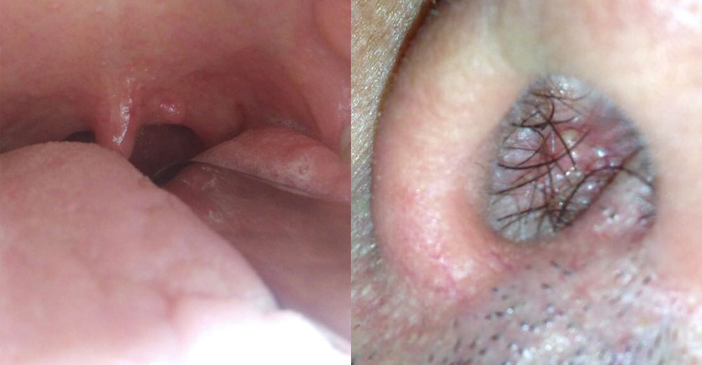 papilloma hpv gola