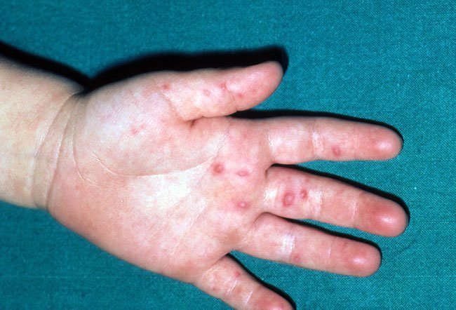 warts on hands sexually transmitted etiologia enterobiozei