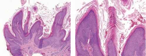 Human papillomavirus facial warts