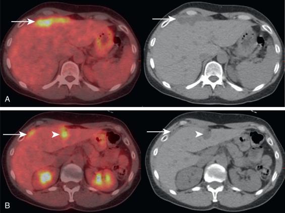 Peritoneal cancer pet scan, Imunoterapia in cancer