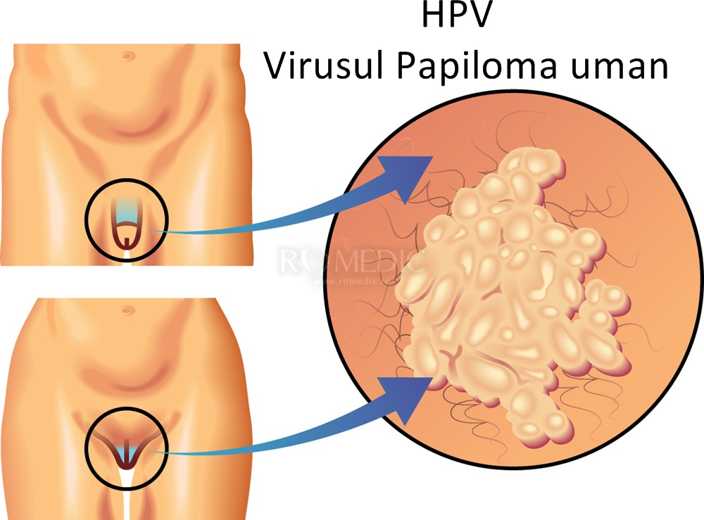 veruci genitale patogeni