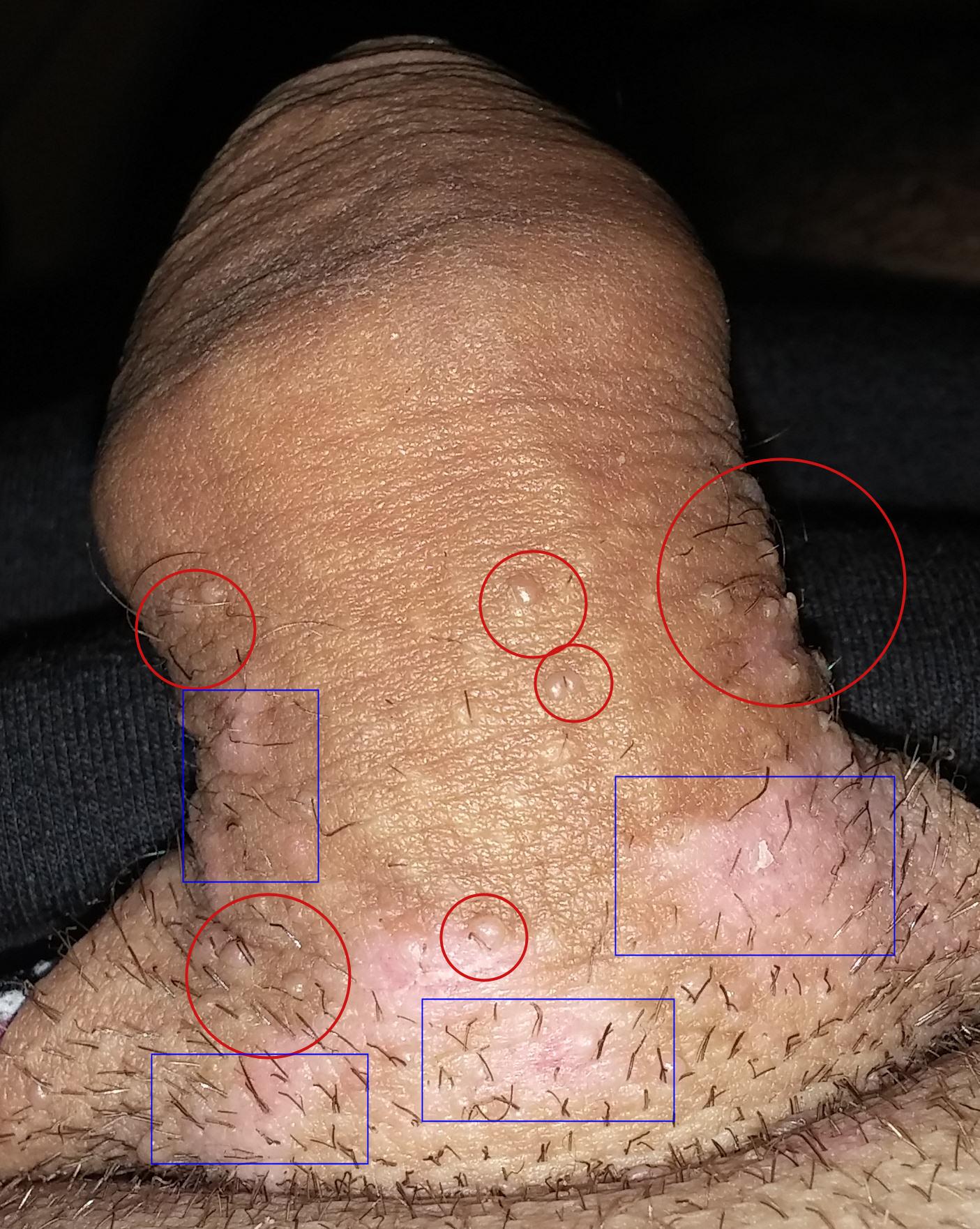 Comment depister papillomavirus chez lhomme, Recherche de papillomavirus chez l homme