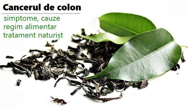 Cancerul colorectal poate fi vindecat daca este depistat precoce | topvacanta.ro