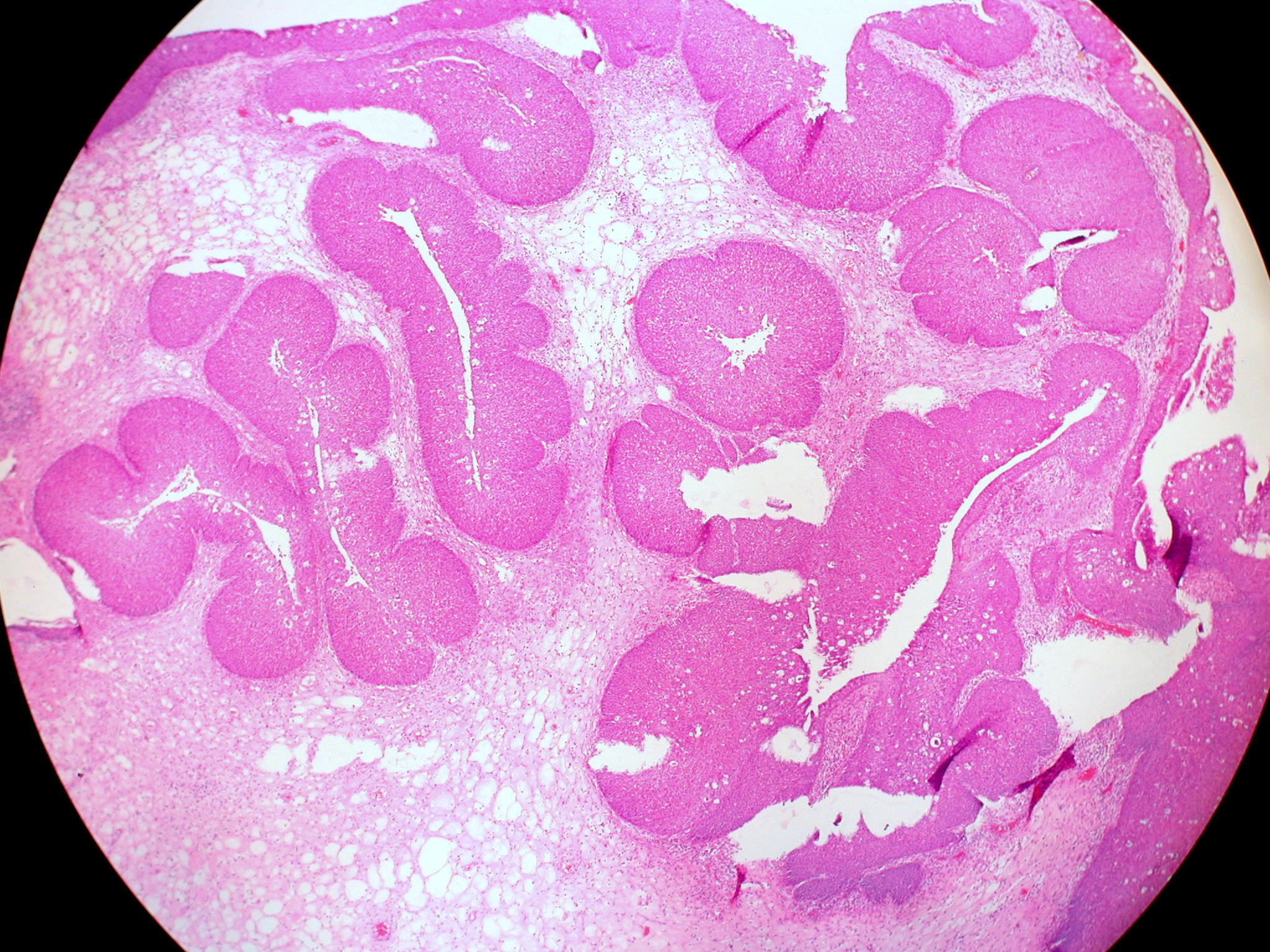 Sinonasal papilloma inverted type - Inverted papilloma nasal pathology