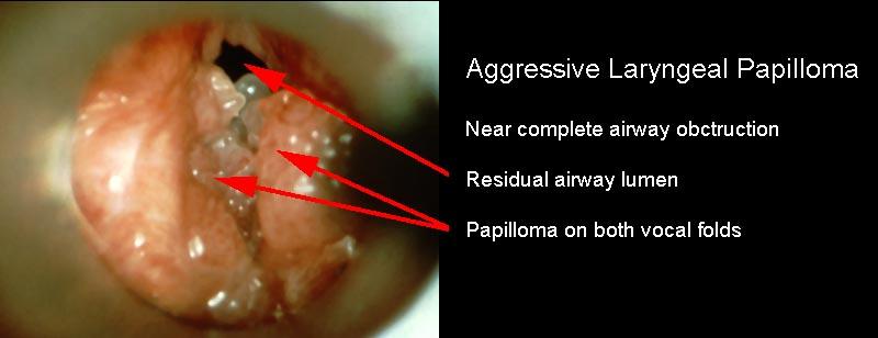 Papillomatosis upper airway, Referințe bibliografice pe an