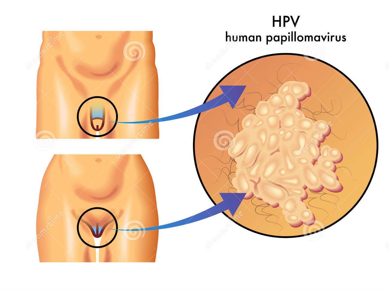 hpv sintomi negli uomini