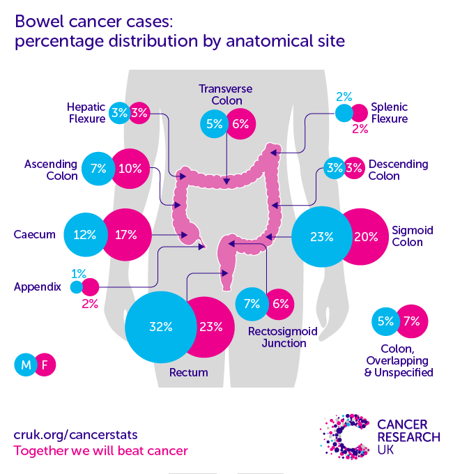 colorectal cancer epidemiology 2020 modul de evacuare a tuturor viermilor