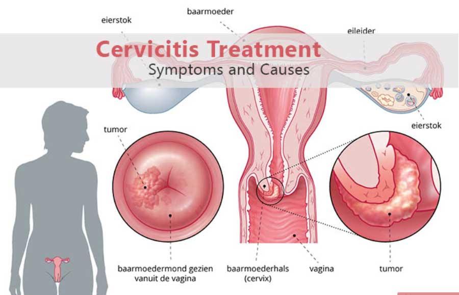 care tratează papilomele orale rămășiță de negi genitale