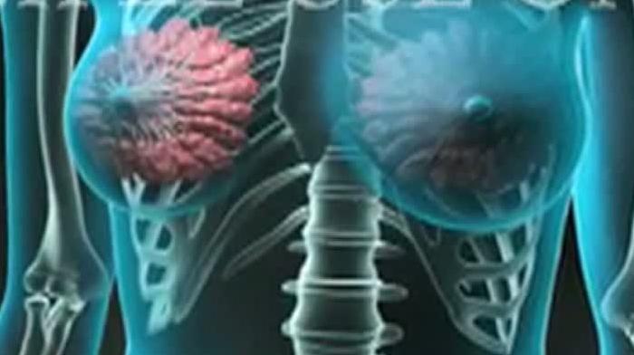 În Moldova se înregistrează anual de cazuri de cancer mamar