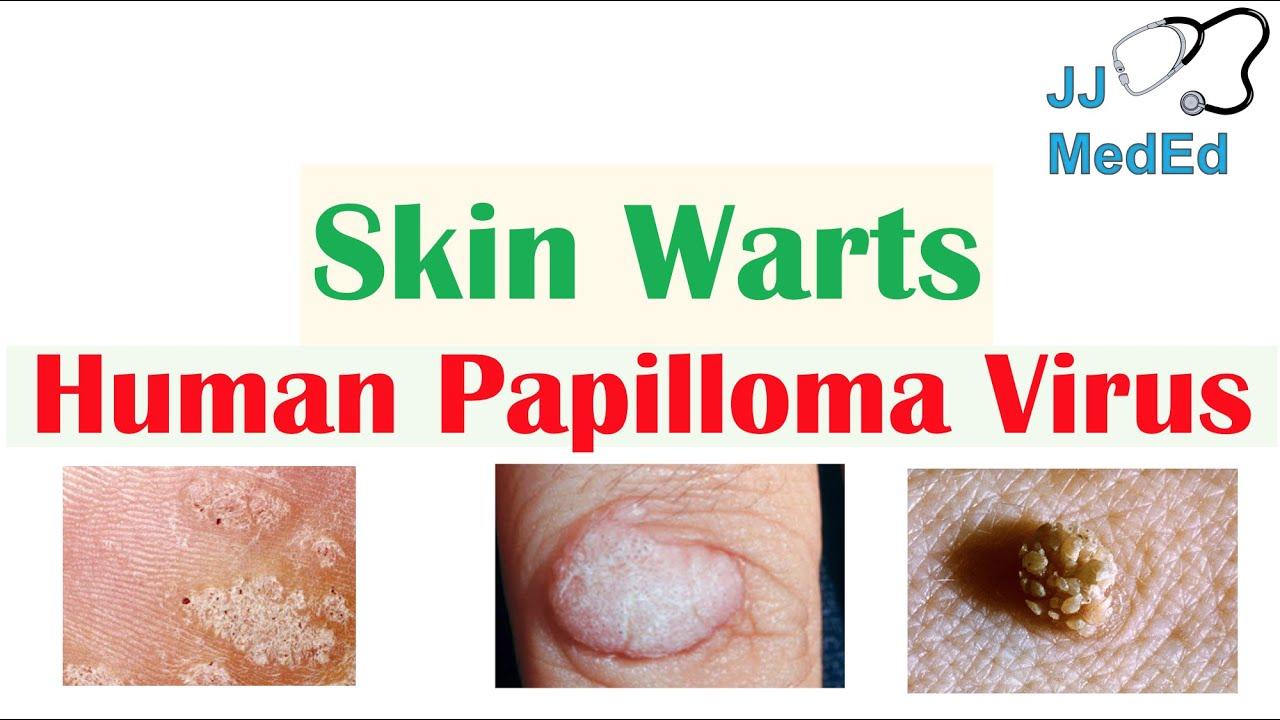 il papilloma virus si trasmette all uomo