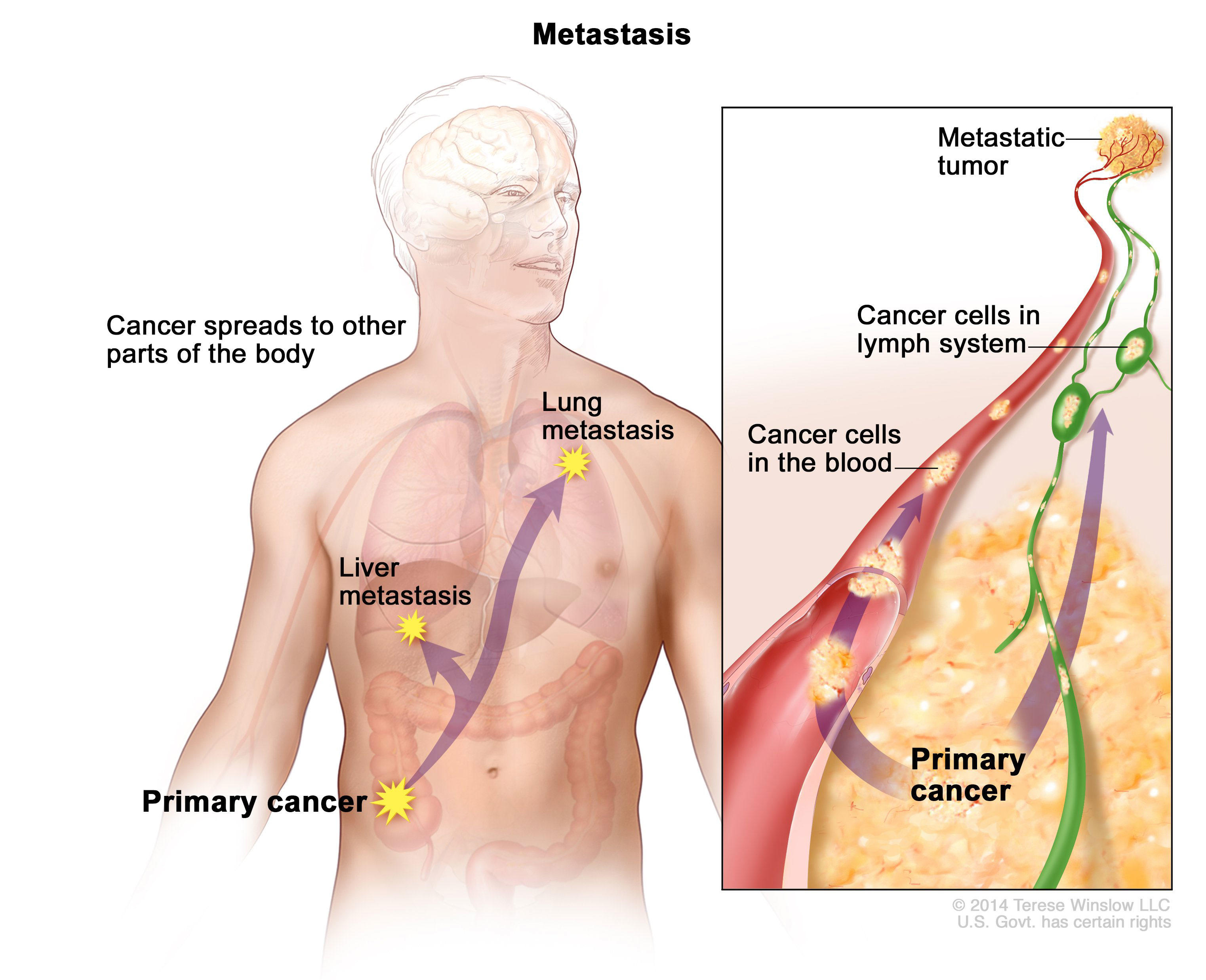 metastatic cancer of the colon dezintoxicare curat colon de 10 zile