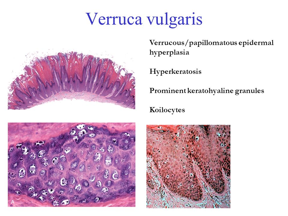 what causes papilloma on uvula sarcoma cancer how long to live