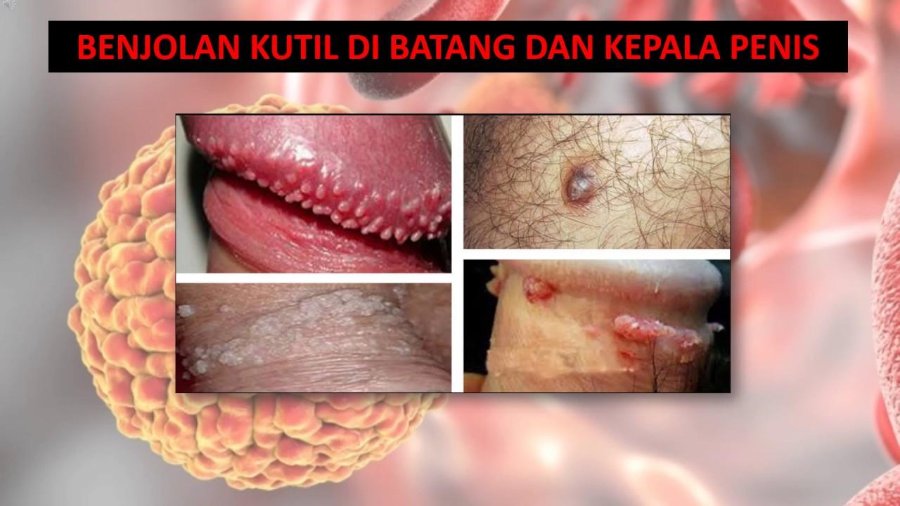 papilloma invertito naso sinusale oropharyngeal human papillomavirus hpv infection