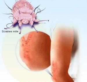 cancer hepatic flexure symptoms papiloma neoplasia