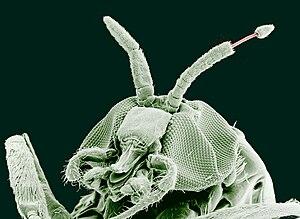 Paraziti dr oz la om. Paraziti dr oz arată 2020