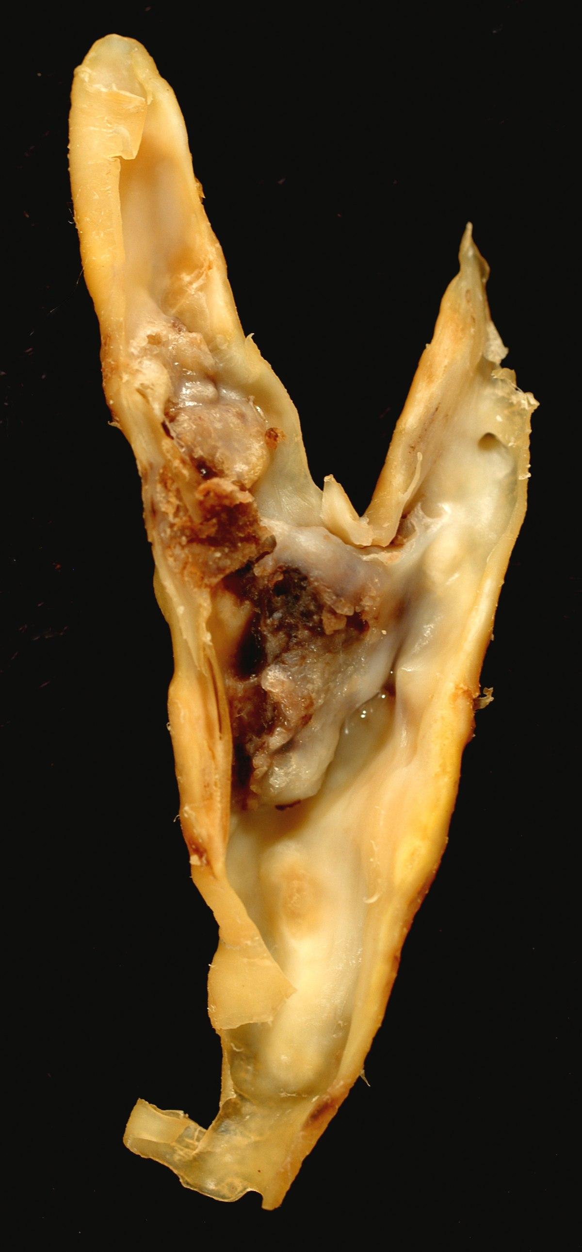verucile plate ce să faci karpas izraisa papilomas viruss
