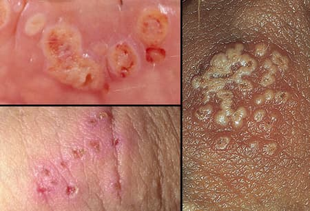 hpv herpes difference dysbiosis constipation