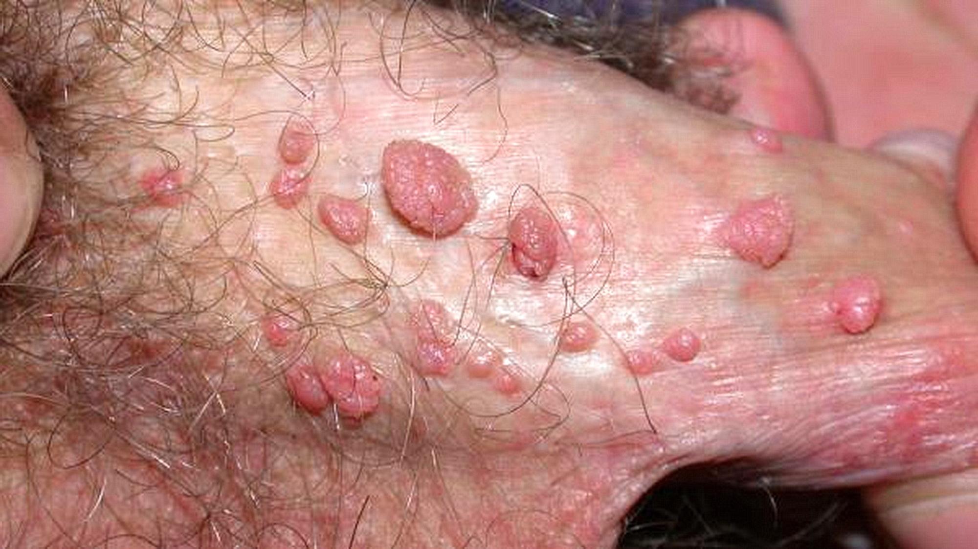 papilloma genitale femminile