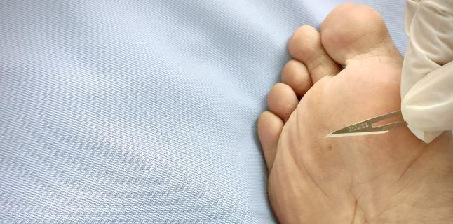 Veruca plantara sau negi in talpa: cum se manifesta si ce tratament exista