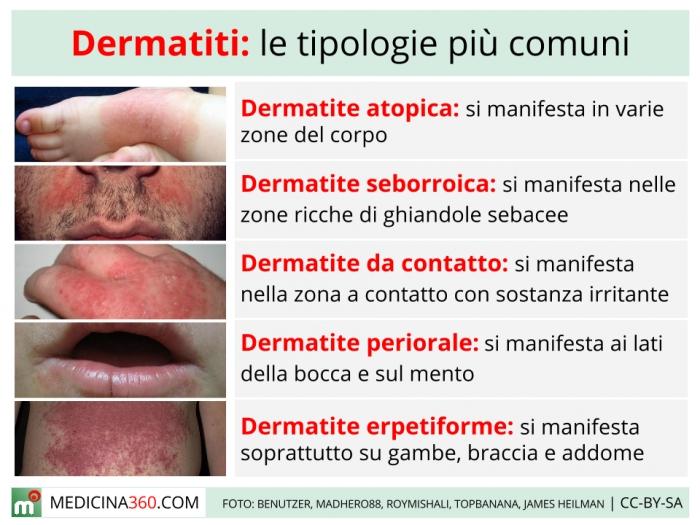 Ai un copil cu dermatita atopica? - Mamicile iubesc - Dermatite 6 anni