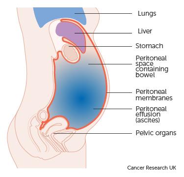 Gastric cancer neoadjuvant chemotherapy