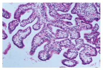 papilloma plexus choroideus condilomul nu dispare