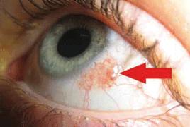 hpv virusu nedir tedavisi