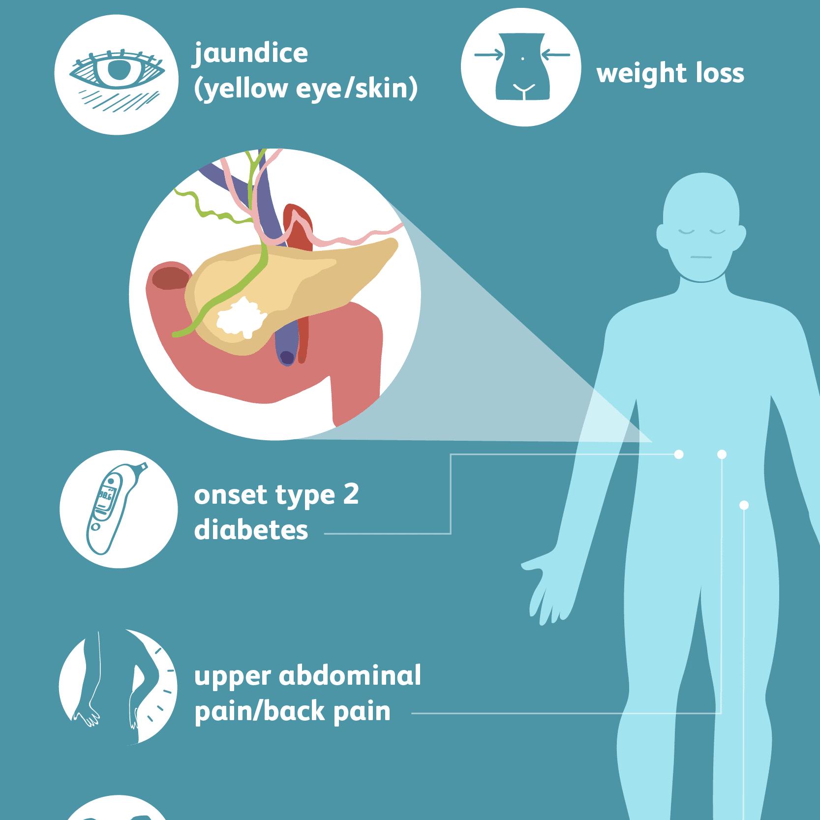 abdominal cancer pain symptom