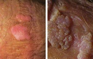 human papillomavirus genital