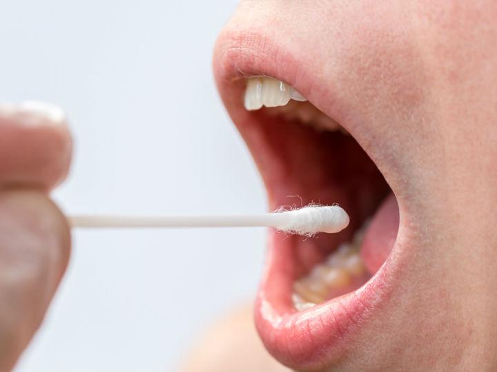 papilom al cavității bucale detoxifiere cu ceapa la talpi