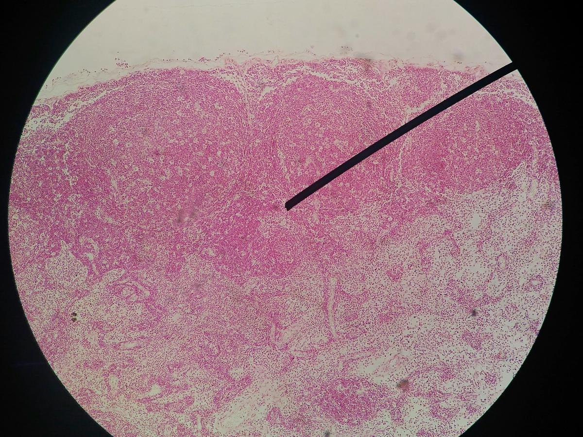 paraziți sub pielea umană hpv male removal