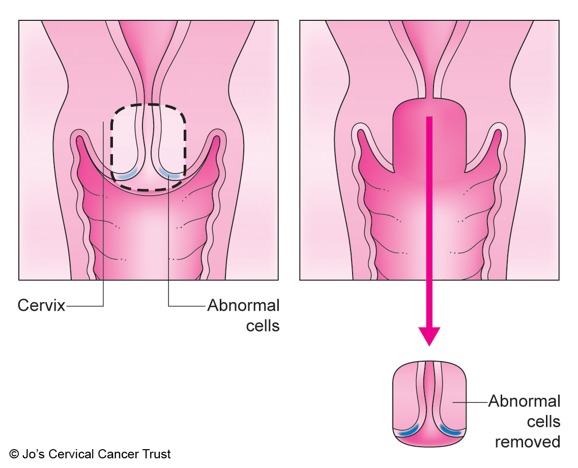 hpv cell removal procedure