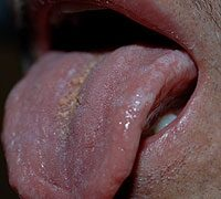 Hpv szemolcs nyelven. Papilloma virus vaccino opinioni. Modalități de stabilire a lipitori varicele
