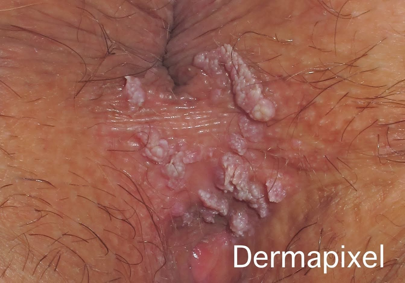 Imagenes virus del papiloma humano verrugas genitales.