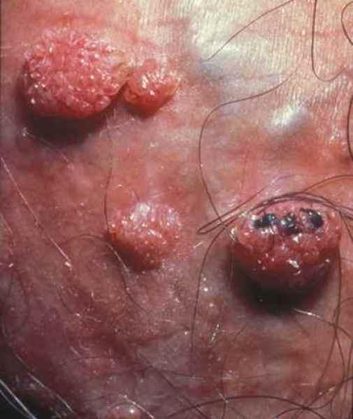 remedii parazitare simptome de infecție