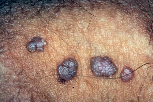 medicamente antihelmintice pentru prevenirea la adulți cum să curățați corpul de pastile parazite