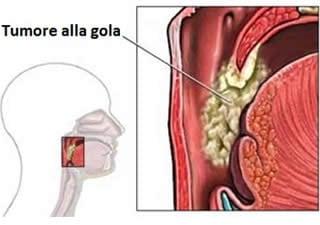 humanae vitae - Olir Papilloma alla gola cause