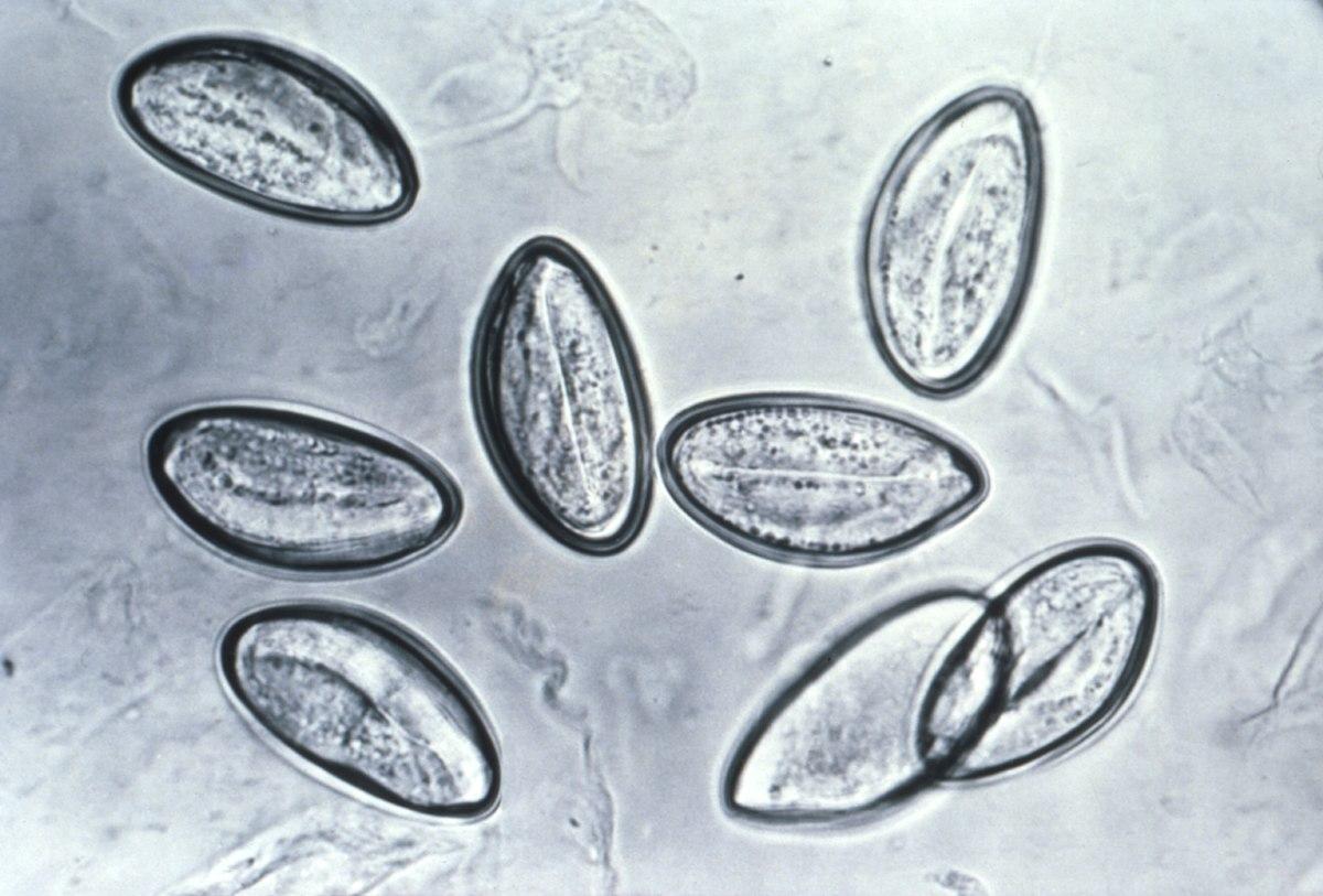 Enterobius vermicularis filo. Oxiuri perioada de incubatie Viermi si paraziti intestinali la copii