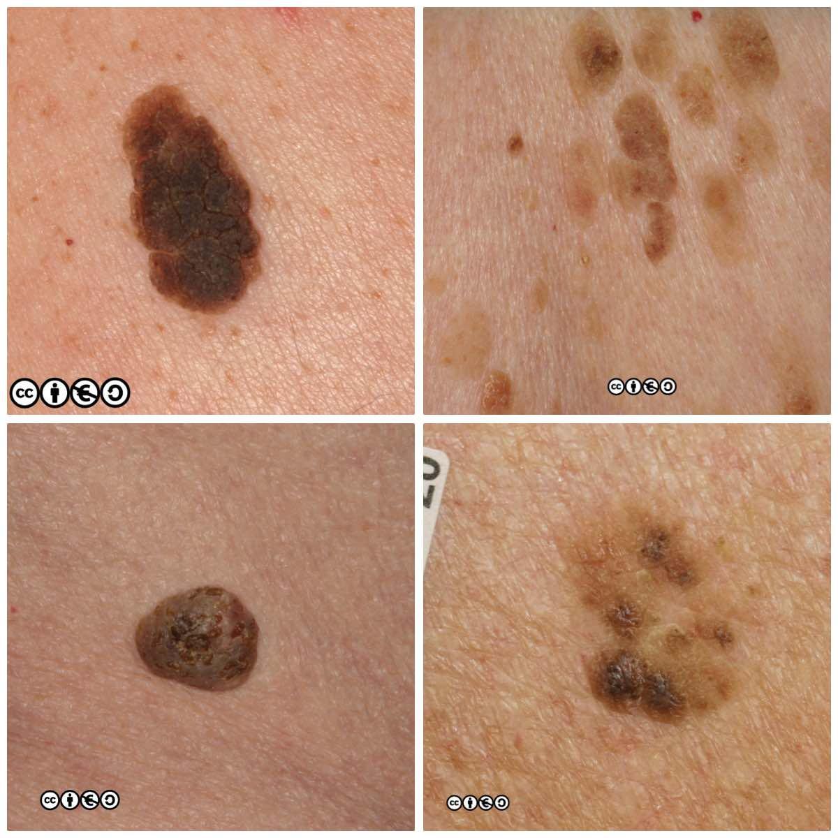 Skin cancer benign mole