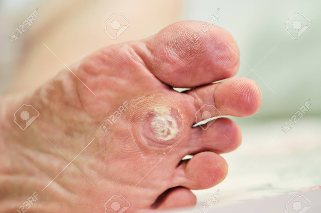 wart on foot or callus