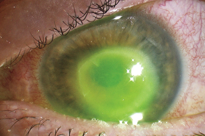 raport parazit îndepărtarea condilomului colului uterin