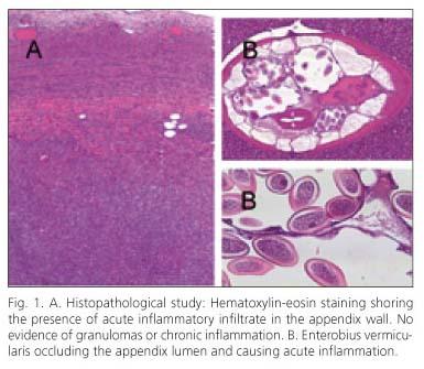 dezinfectare și tratament împotriva ectoparaziților