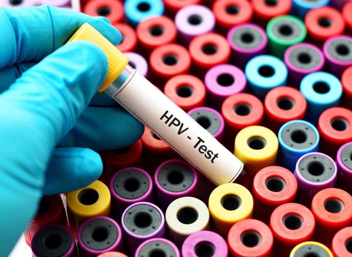 Jai le papillomavirus que faire - topvacanta.ro, J ai le papillomavirus que faire