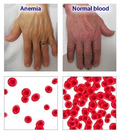 Anemia feripriva - simptome, tratament si prevenire | Bioclinica