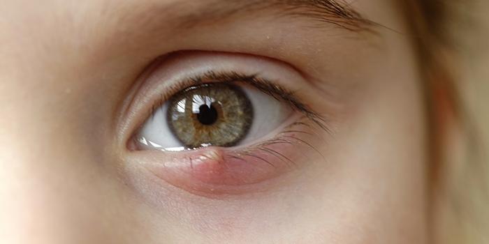 papilloma agli occhi
