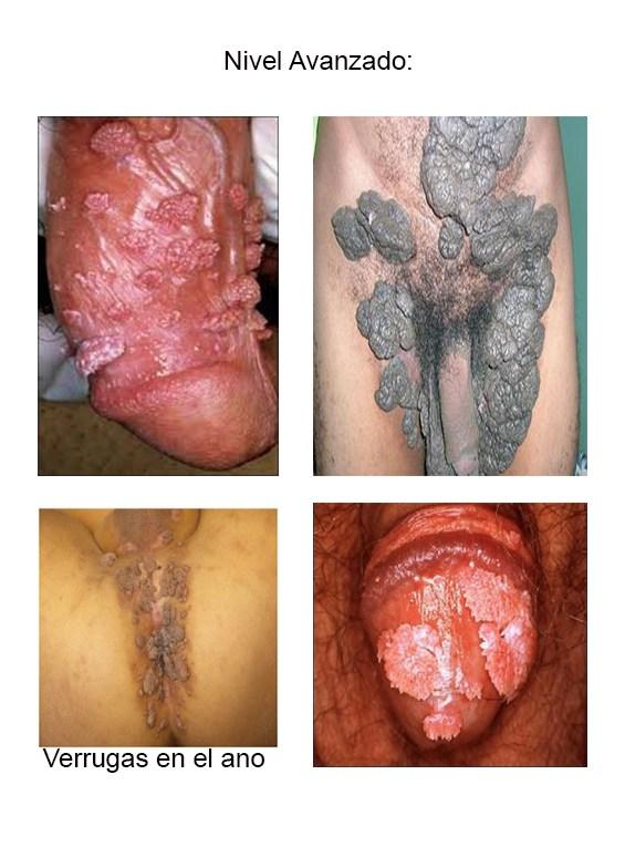 Virus papiloma en el ano. Virus papiloma humano hombres ano