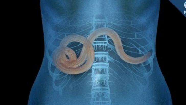 Clinica de tratament a viermilor umani Medicamente pentru viermi din corpul uman