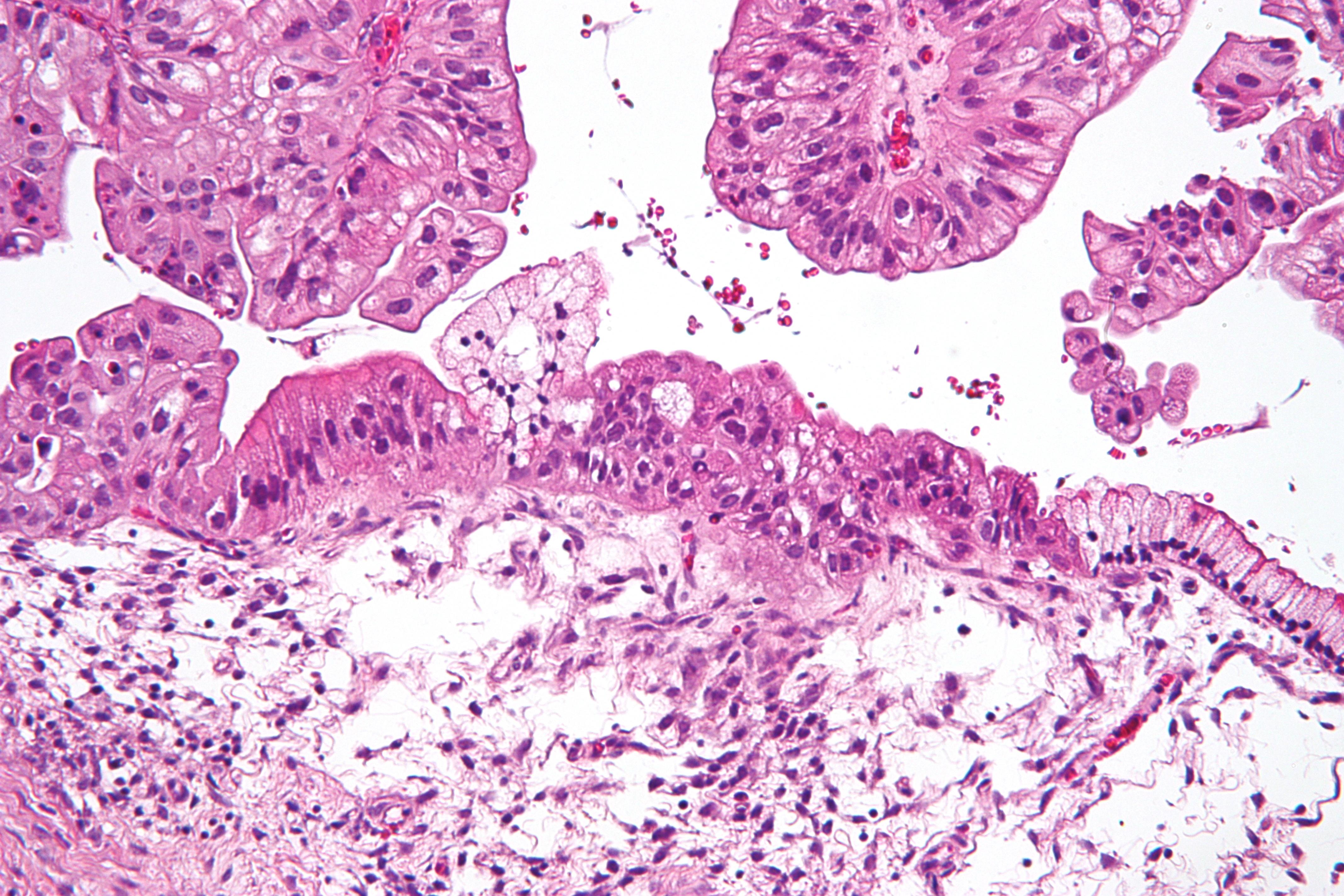 Endometrial cancer histology