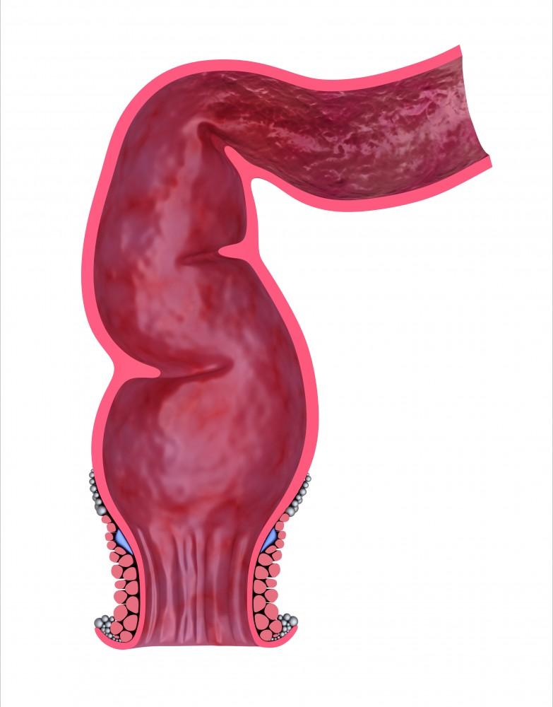 Simptome ale cancerului colo-rectal - Amethyst Radiotherapy   Centrul de Radioterapie Amethyst