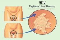 hpv virus o que e
